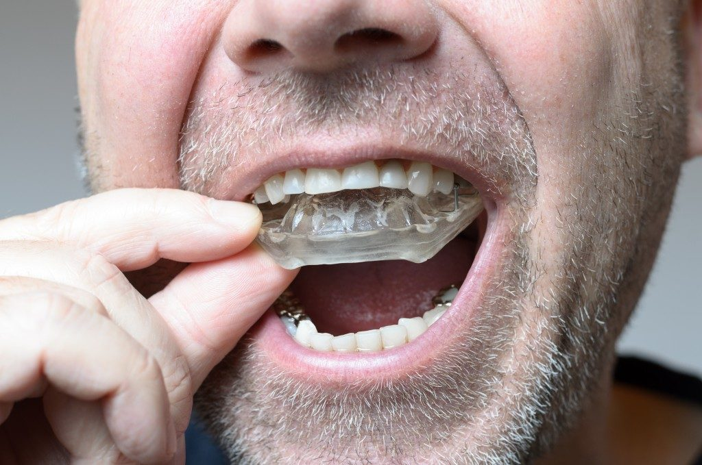 """Man placing a bite plate on his mouth to avoid teeth grinding"