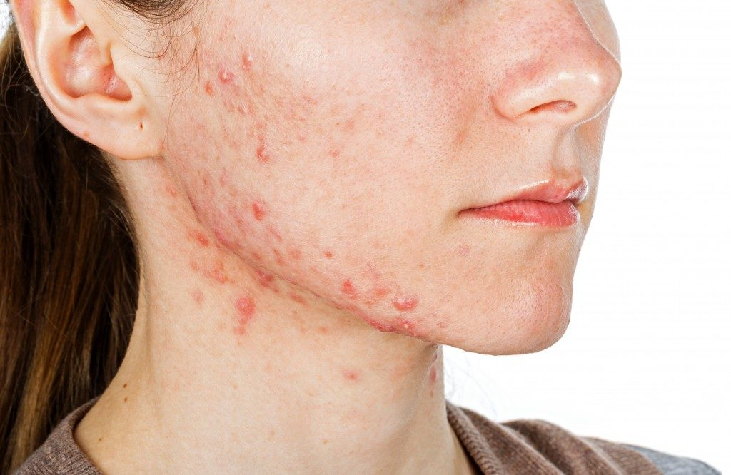 Woman with rosacea on her jaw