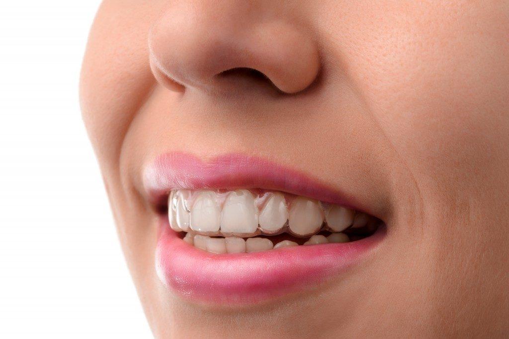 Woman wearing mouthguards