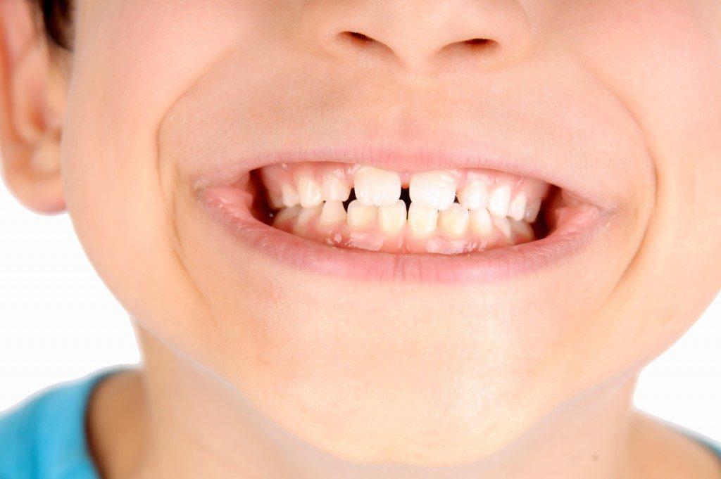 boy showing milk teeth