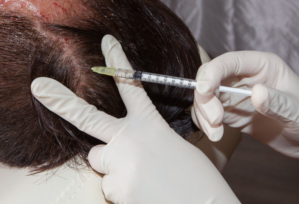 medical treatment of hair loss
