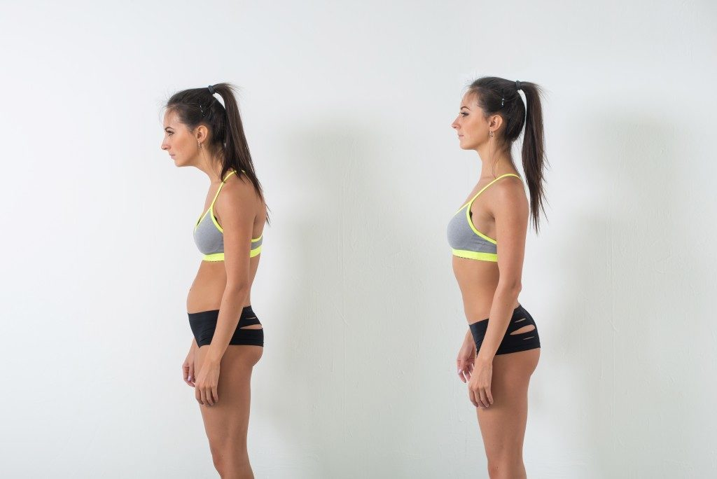 Woman with posture problem
