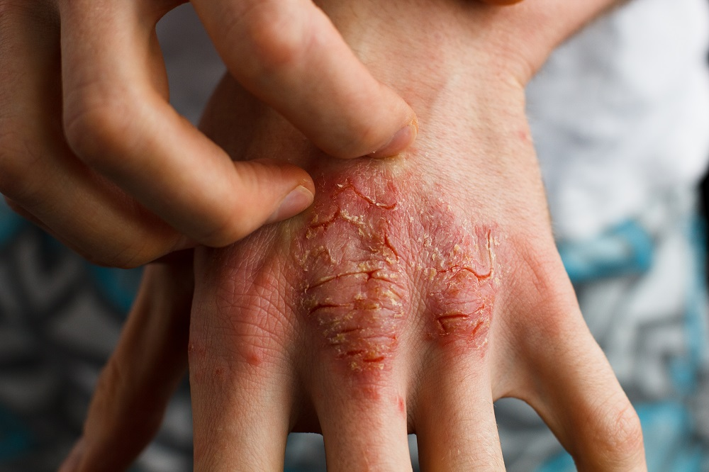 rashes on hand