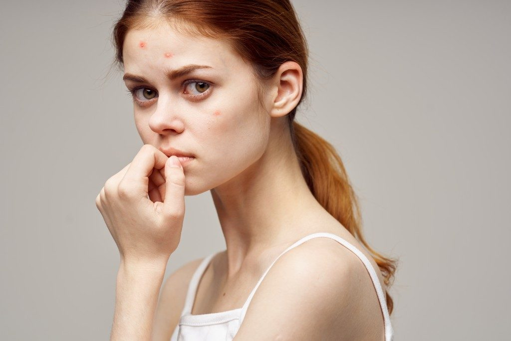 Worried woman with acne