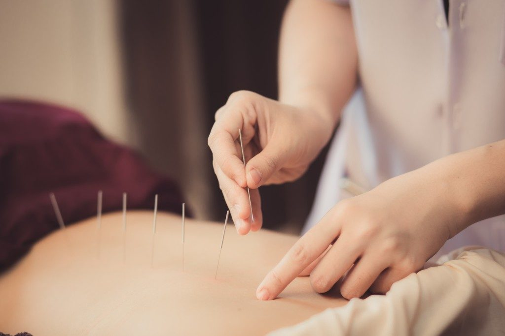 close up of acupuncture