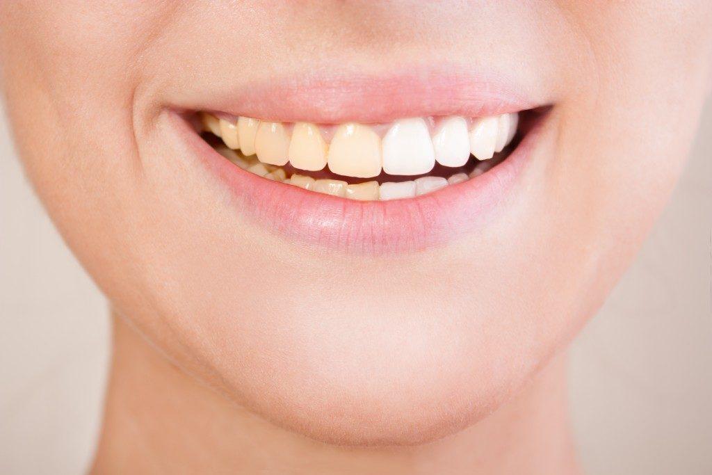 yellowish teeth of a woman