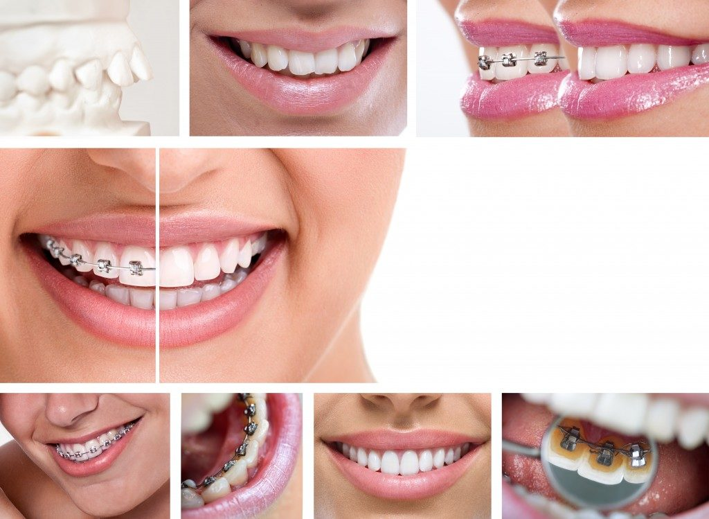 Braces or Invisalign? Most folks who want to straighten their teeth are left with this question. It may seem trivial to some, but to the one who wants a better set of teeth, it's a tough decision to make. Given the resources available online, it's still best to consult an orthodontist to make an informed decision. Invisalign is not always the ideal option for people, which is why you need an orthodontist's opinion. On the other hand, some people are uncomfortable with the thought of having metals attached to their teeth, although now there are several options for braces including lingual and ceramic braces. West Jordan, UT has some of the best orthodontists that can help shed some light on the matter. While you're still planning your visit to the nearest orthodontist, why don't you take a look first at our comparison between the advantages of both braces and Invisalign: The Advantages of Braces It is great for all types of treatments. Invisalign is not always the best treatment method. Braces, on the other hand, can be used to deal with any dental issue. As it uses metal wire and anchors to pull your teeth into its proper alignment, it is the most effective method of moving and correcting your teeth's position. Perfect results are achievable. Braces are designed to move teeth in position better since it has more force due to the metal wire and anchors. Invisalign is quite limited in the number of teeth it can move at a single time. There are several types to choose from. If having a metallic mouth turns you off, there are plenty of other different braces to choose from, including clear, ceramic, and lingual (behind the teeth) braces. Treatment time is faster. When it comes to closing gaps between the teeth and aligning them, braces have the upper hand over Invisalign. Orthodontists schedule appointments to check on your teeth's progress and make the necessary adjustments based on the developments. Normally, people would want their orthodontic treatments to be done within the quickest possible time. Your orthodontist's experience and skill level can further speed up the treatment time. The Advantages of Invisalign It looks better. Most adults and self-conscious teens would prefer having invisible orthodontic treatment because it doesn't look awkward on them. You won't even have to worry about having a shiny metallic smile in photographs. It is easier to eat and clean teeth. Having Invisalign means you get to eat and clean your teeth as you normally would without it. As the recommended hours to wear Invisalign is only 20 to 22 hours a day, you can take them off whenever you eat or brush and floss your teeth. It is a lot easier compared to having braces. Consultations aren't as frequent. A huge chunk of the orthodontist's work takes place before you wear retainers. Your teeth are scanned in 3D and the results are forwarded to a laboratory where they make your custom retainers. Trips to the clinic are kept to a minimum because no regular adjustments are needed. This means you won't waste filing leaves from work just to visit your orthodontist. They are comfortable. It is often advertised as less painful compared to braces. The retainers are made from special plastic and are cast and created to fit a specific patient's mouth. This means you don't get as much gum and mouth problems with Invisalign. You need to consider a lot of things in choosing which one is the right orthodontic treatment that's suitable for you. Take a closer look at your options and ask experts for their opinions. Gathering as much information as you can help you make the right decision.