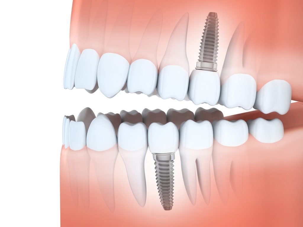 dental implants concept