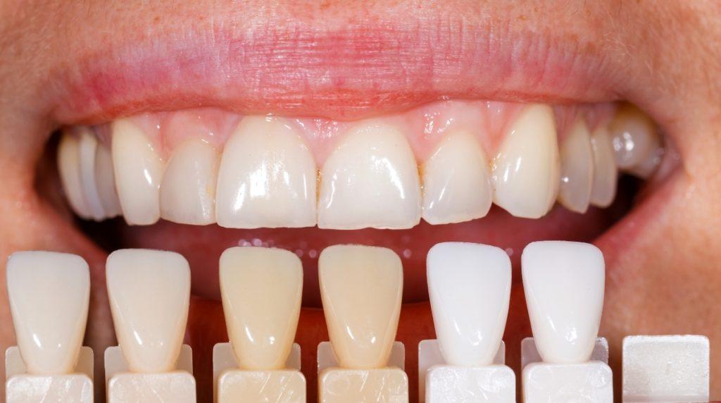 teeth color selection